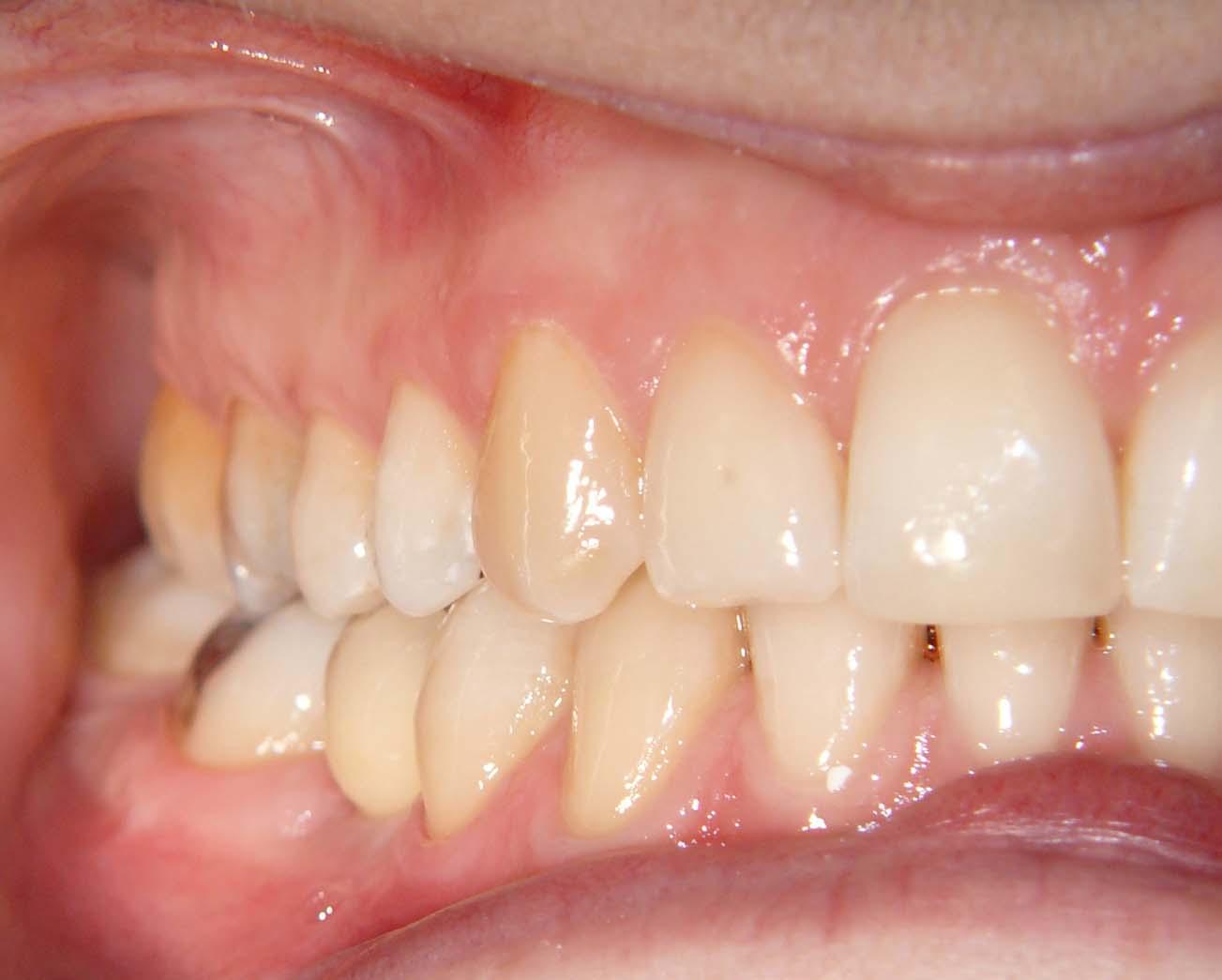 Zobni vsadki